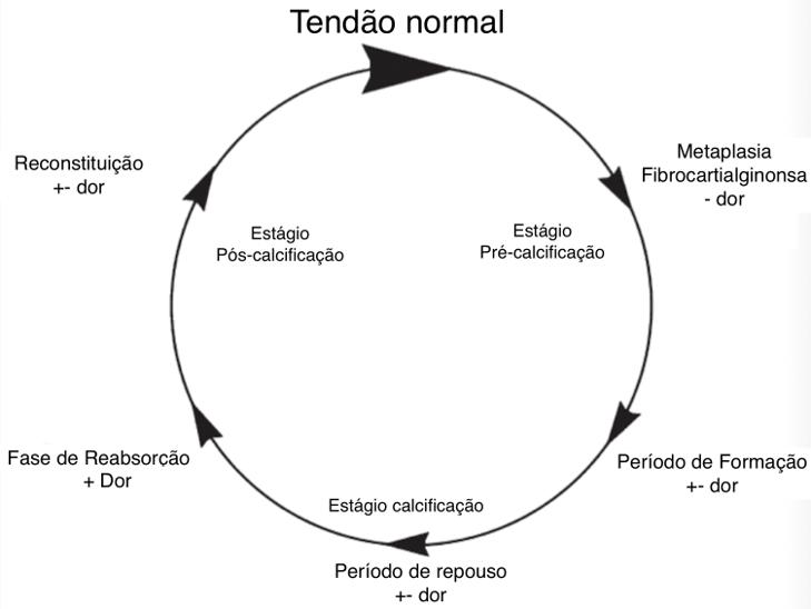 Tendão Normal