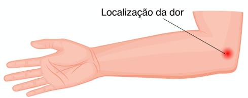 Epicondilite Medial